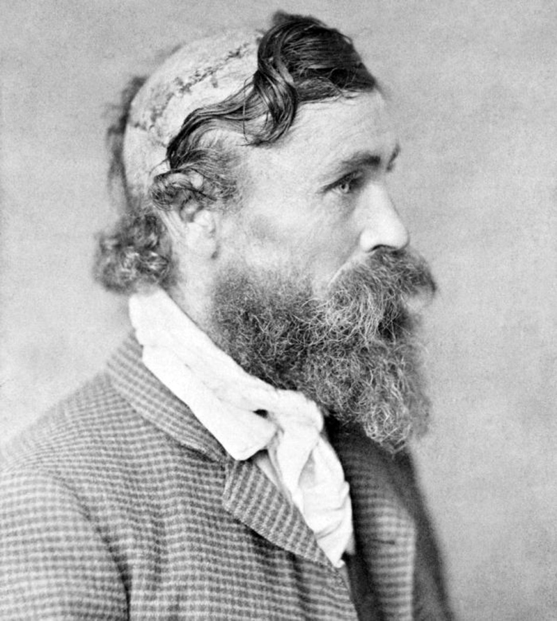 010 - Robert Gee scalped by sieox chief little tutle 1864